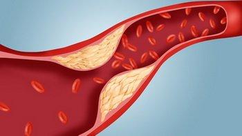 Чем опасен повышенных холестерин