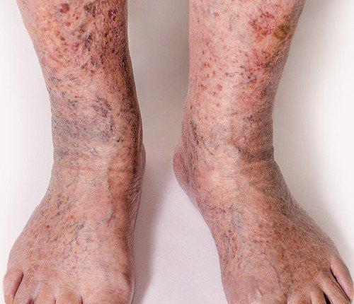 венозный дерматит и проблемы с расширением вен